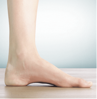 high-arch-foot