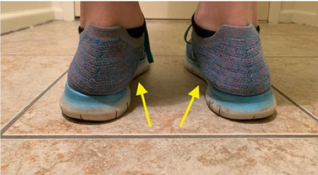 feet pronation