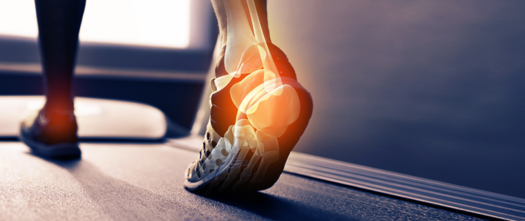How Can I Reduce Joint Pain Caused by Flat Feet